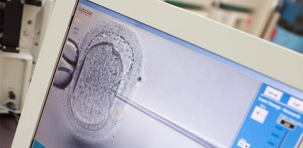 受精 体外 スケジュール 体外受精(IVF)の基本知識